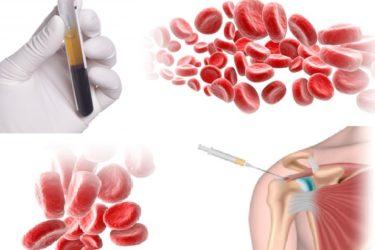 Zabiegi ortopedyczne